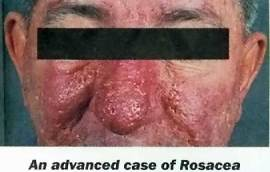 man with advanced rosacea